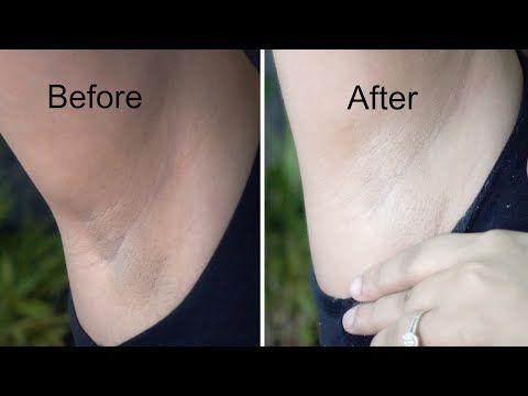 Whiten Dark Underarms in 20 Minutes | Whitening Cream Bleach | Demonstration - YouTube
