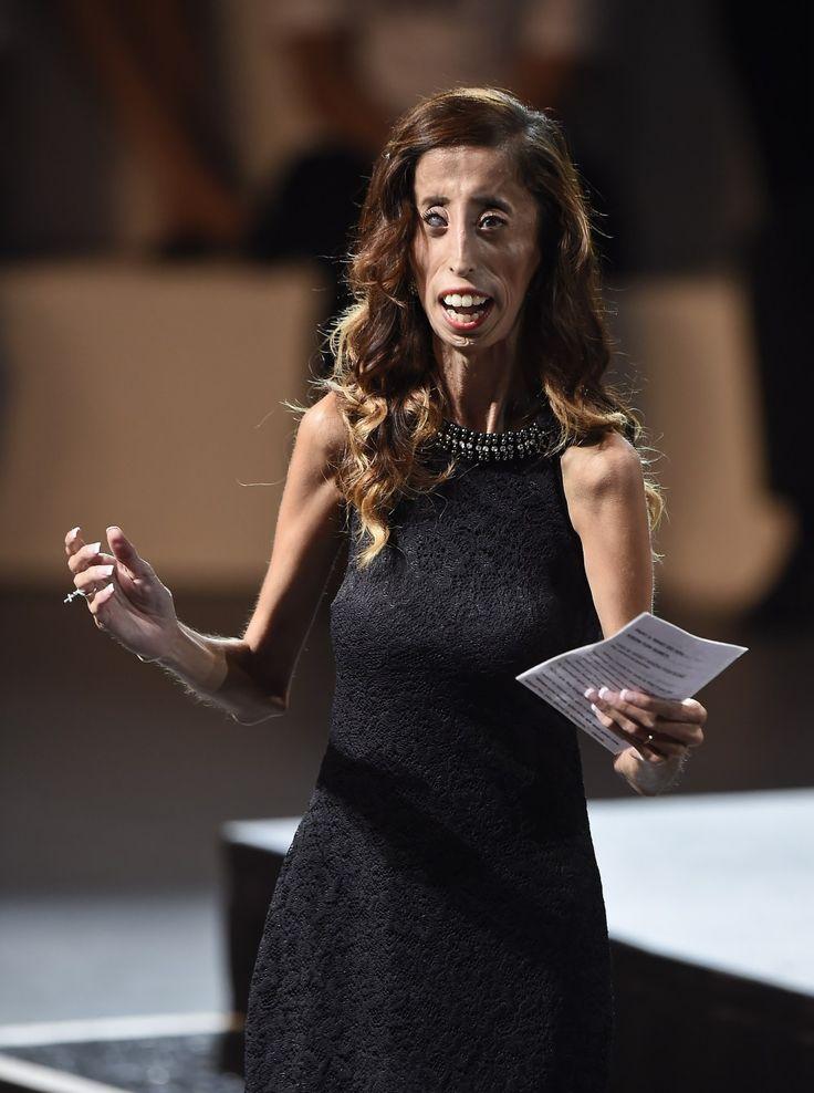 Lizzie Velasquez envoie un message de paix à ses détracteurs