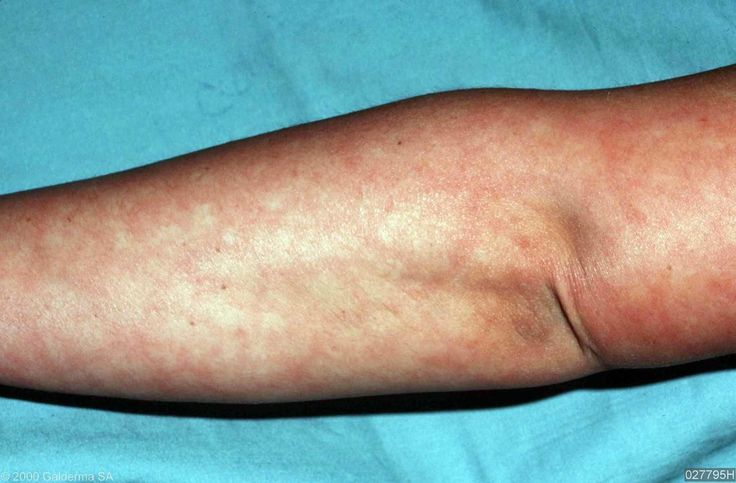 Mottled Skin Causes Symptoms Pictures Treatment and More