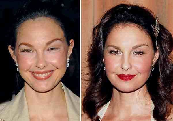 Ashley Judd Plastic Surgery Before After Botoxbeforeafter