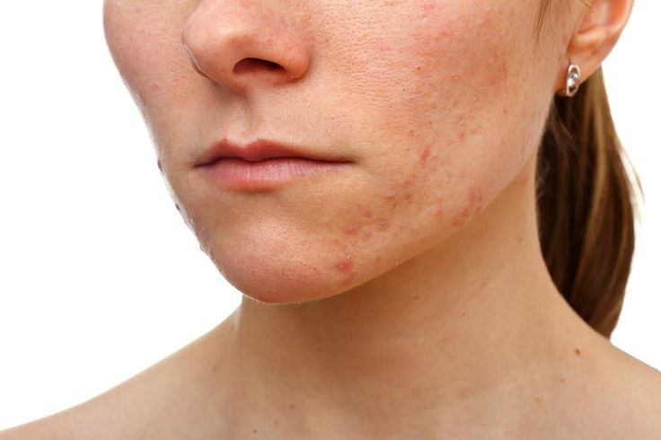 The Pixel Laser is a revolutionary minimaly-invasive Laser Acne treatment. It uses the very latest fractional technology to get rid of unsightly acne scars and reduces the appearance of dark pigmentation. It is suitable for all skin types, including dark skin. The Pixel Laser can also reduce pore size and smooth out rough skin.Acne scar treatment (Pixel lasers)   Private Healthcare UK