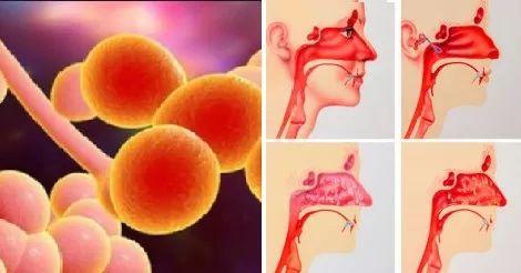 Naso Tappato e Sinusite? Ecco il rimedio definitivo con Aceto di mele e Argento Colloidale