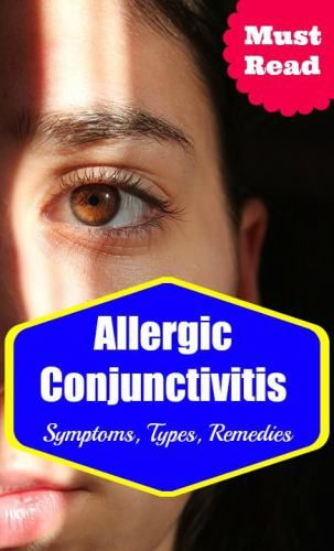 Allergic Conjunctivitis Symptoms, Types and Treatment