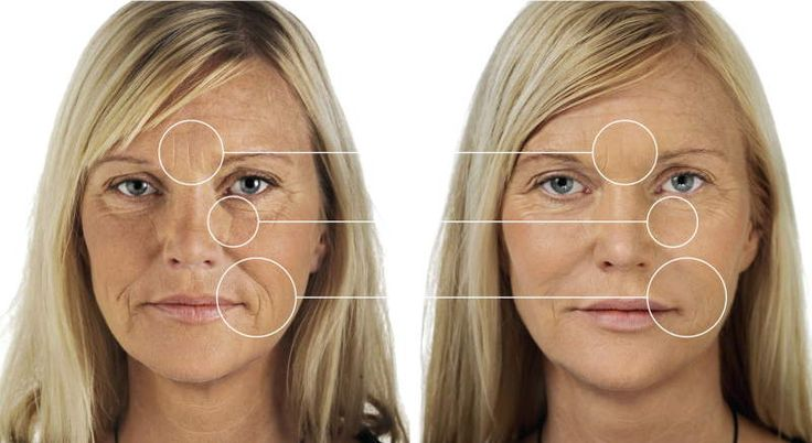Understanding Dermal Fillers Before And After