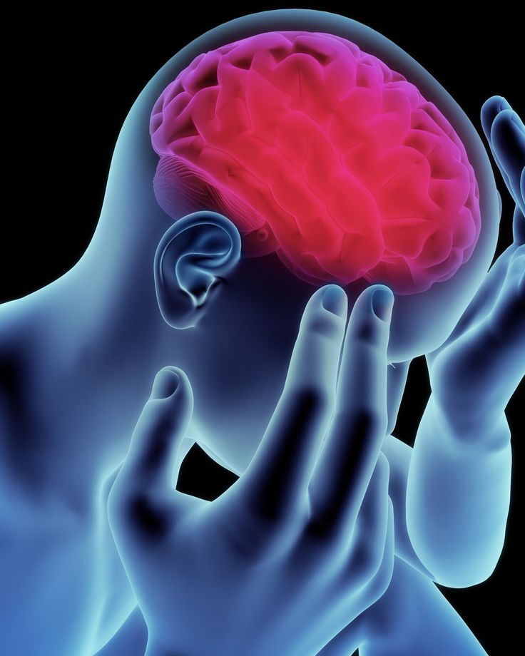 What You Don't Understand About Migraines