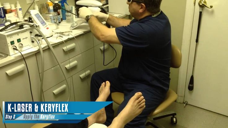 See how K-Laser and Keryflex can work to combat your fungal toenail infection!
