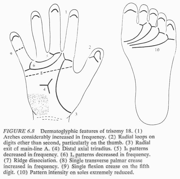 Hand chart for Edwards syndrome (trisomy 18) - Dermatoglyphics in Medical Disorders, 1976