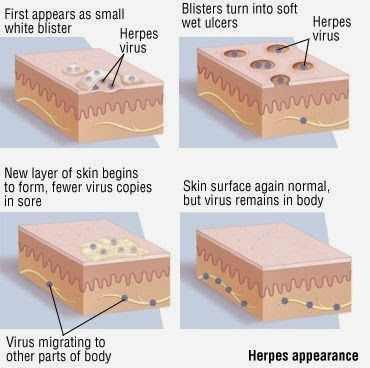 Best book about  Herpes symptoms : HOW to cure for Herpes simplex 1 - 2 FAST ! hyperthyroidism symptoms, low thyroid, symptoms of hyperthyroidism, thyroid disease, thyroid, thyroid nodules, hypothyroid symptoms, thyroxine, hypothyroidism diet, underactive thyroid, overactive thyroid, low thyroid symptoms, enlarged thyroid, underactive thyroid symptoms, thyroid symptoms, thyroid gland, hyperthyroid, pituitary gland, thyroid problem symptoms, symptoms of hypothyroidism, iodine deficiency…