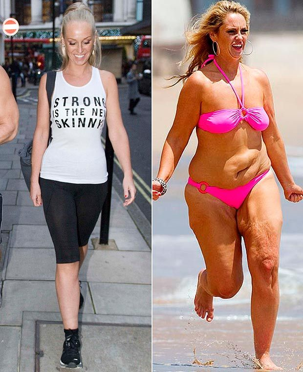 Josie Gibson, before and after. Wauw!