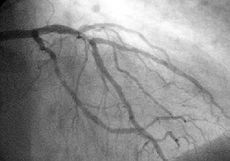 """A coronary angiogram (an X-ray with radio-opaque contrast in the coronary arteries)..."