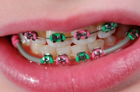 Recipes for people with braces ~ Recipes for after mouth surgery