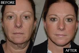 chin fat transfer – Google Search – #chin #fat #Google #Search #transfer