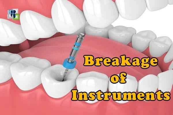 انكسار أدوات المعالجة اللبية أثناء علاج عصب الأسنان Earbuds Electronic Products Instruments