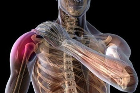 Natural Cures For Bursitis And Tendonitis