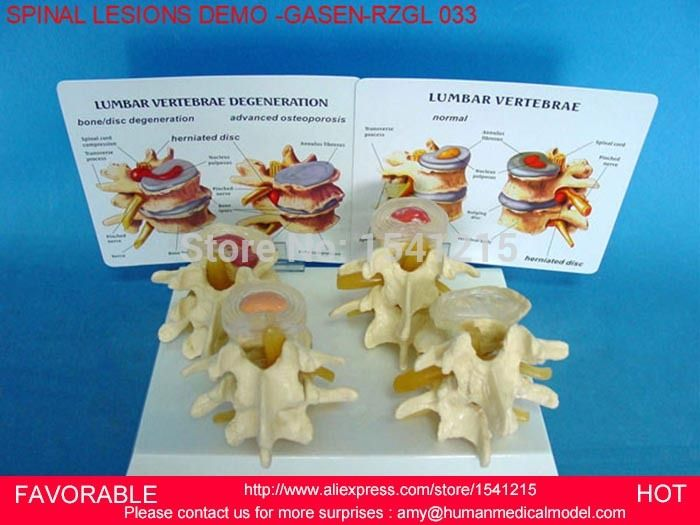 LUMBAR MODEL SPINAL NERVE MODEL CAUDAL EQUINA NERVE LUMBAR SPINE DISC MODEL SPINE SPINAL LESIONS DEMONSTRATE -GASEN-RZGL033