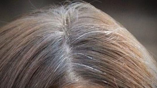 How to stop gray hair using home remedies naturally? Presumably, the greatest bad dream of individua...