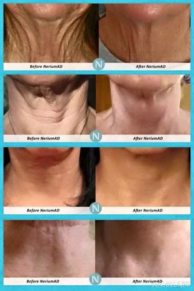 Turkey neck??? Nerium can help!!!!! Crepey? Contact me at www.adrianneg.nerium.com