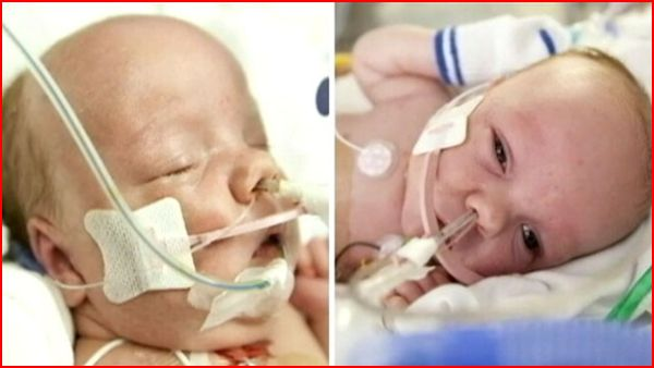 Conjoined Twin Boys Successfully Separated