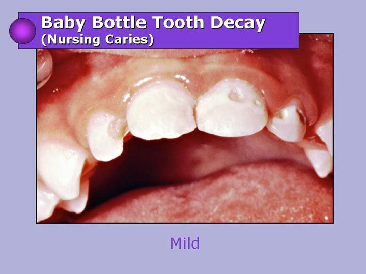 Baby Bottle Tooth Decay Mild | sftd13