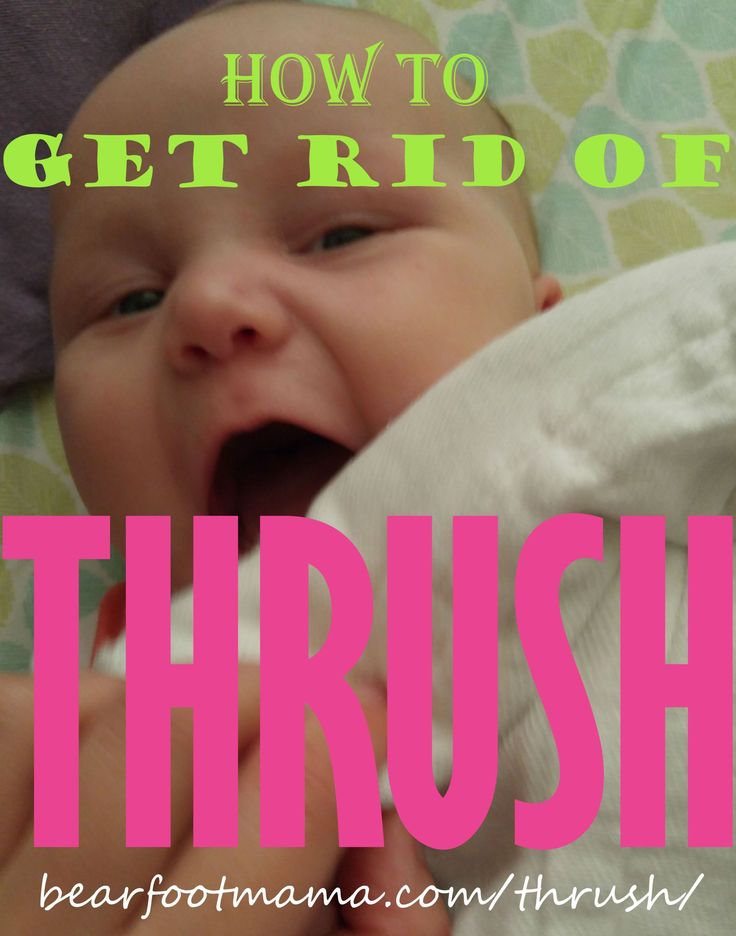 How To Get Rid of Thrush (yeast infections) in BABY | Baby ...