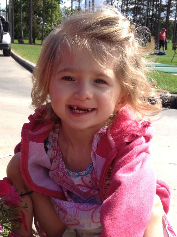 Livie was born with many congenital anomalies.  She has hydrocephalus, absent radius bones on both arms, scoliosis, cleft lip and palate, and mild kidney issues (via Inside Gillette Blog).