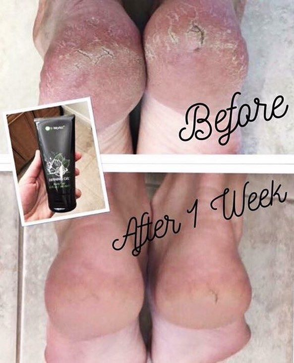 It's getting to be that time of year when our feet get neglected. Don't let your feet and hands dry out this winter! Our Defining Gel is your answer!! Message me! This stuff is AMAZING! We call it Liquid Gold because it works so well for so many things!