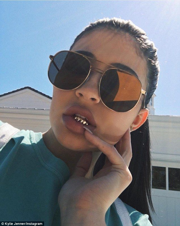 Shiny: She also revealed in an Instagram post that she at least briefly installed a gold 'grill' on her lower teeth