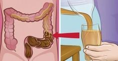 """Η λάθος διατροφή οφείλεται για την συσσώρευση 9 κιλών αποβλήτων στο σώμα. Δείτε ΠΩΣ να """"ξαλαφρώσετε"""" το Έντερό σας!"""