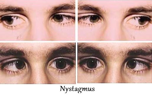 nystagmus is an uncontrolled eye movement problem in which eye, Skeleton