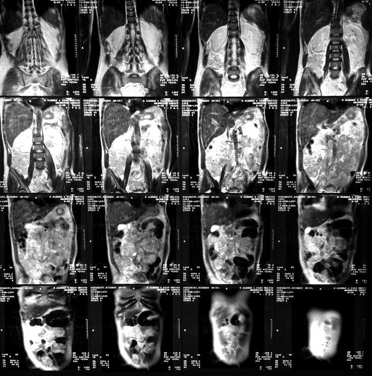 Resonancia magnética del abdomen, sección coronal.