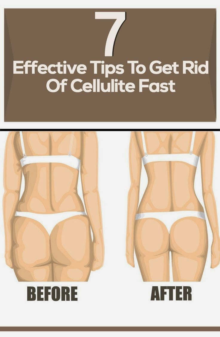 7 Tips To Naturally Reduce #Cellulite