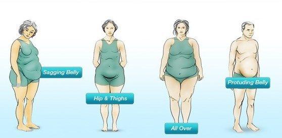 Jaký máte typ břicha a jak se zbavit přebytečného tuku