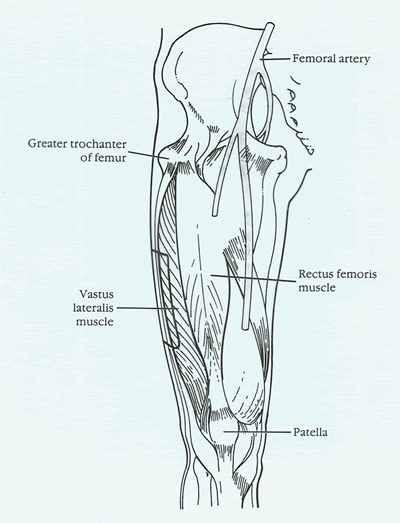 Vastus Lateralis injection site | Nursing | Pinterest