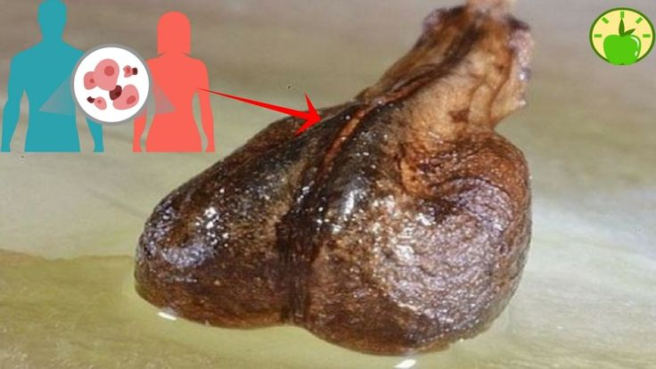➤This Seed CAN CURE ANY CANCER IN DAYS, And Was HIDDEN for more than 100...