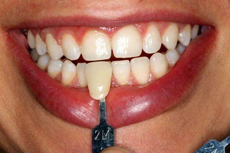 Quali sono i prezzi per lo sbiancamento dei denti  all'estero? Vi invitiamo a vedere di più qui e contattaci subito! http://www.intermedline.com/dental-clinics-romania/ #clinicadentale #clinicadentaleinRomania #clinicaodontoiatrica #clinicaodontoiatricainRomania #sbiancamentodentale #sbiancamentodentaleinRomania #sbiancamentodidenti #sbiancamentodidentiinRomania #dentista #dentistainRomania #turismodentale #turismodentaleinRomania