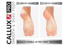 PEDIKŰR HÁMLASZTÁSSAL - PUHA SELYMES LÁBAK  a CALLUX professionális láb peeling-gel.