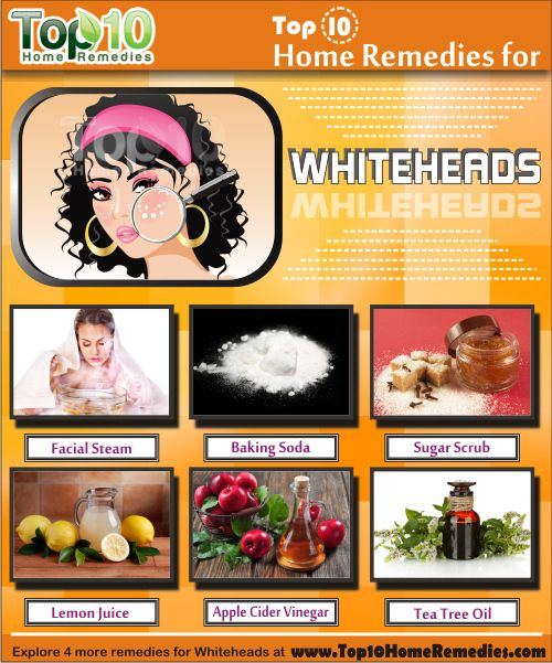 Home Remedies for Whiteheads. A facial steam or sauna is one of the best natural treatments for whiteheads. It helps open up the pores and loosens the buildup of dirt, oil and dead skin cells. #whiteheads #homeremedies