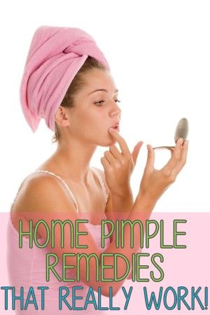 Home Pimple Remedies that Really Work!