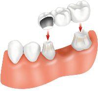 Dental Bridges Pinehurst NC