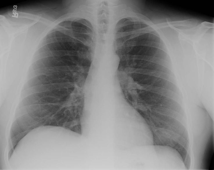 Chest x-ray (PA)
