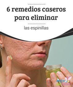 6 remedios caseros para eliminar las espinillas  El acné es uno de las afecciones cutáneas más comunes en toda la población mundial.