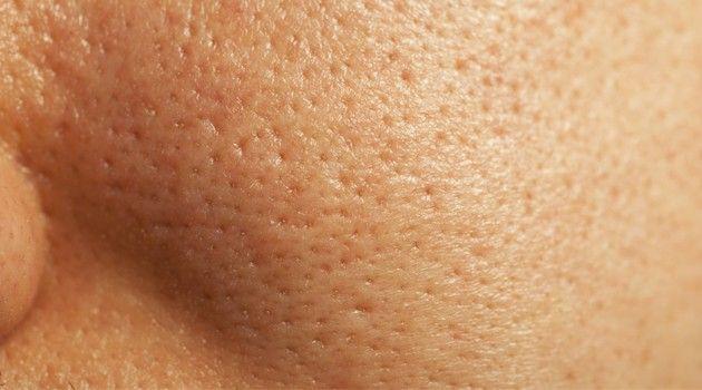 Poros dilatados: tratamentos caseiros para acabar com o problema - Bolsa de Mulher