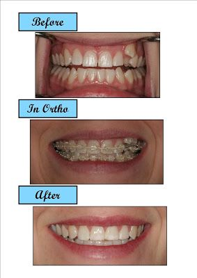House of Healthy beauty and mental,Dental and Aesthetic Care Braces Teeth,Cosmetic Dentistry Dental Implants,Kids and Teen Dentistry Teeth Whitening,Diet Food and Fitness Diet and Weight Management,Fitness and Exercise Healthy Food and Recipes,Weight Loss and Obesity Healthy and Balance,Hair Beauty and Spa Nutrition,Oral Care Products Sex and Relationships,Yoga & Pillates Healthy News,Career sciences education,Common Conditions Diseases,Drugs and Supplement Insurance,Hospitals and Service Blood Disease Brain Centre Cancer Centre,Health Screening Centre Heart Centre,Kids Centre Medical Centre Spine and Joint,Surgeon Living Well Aging Well,Family and Pregnancy Healthy Teens and Fit Kids,Mens Health Womans Health,Mental Health and Wellbeing Drug Addiction and Rehabilitation,More self-help and support Support for children and young people,Therapy and Counselling,Top to Toe Beauty Aesthetic Solution Body Hair,Skin Rejuvanation Surgery Option,Business financial software Technology