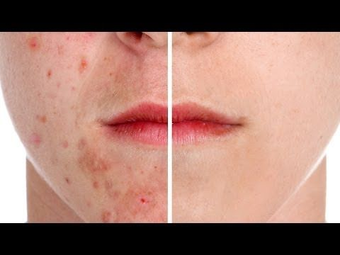 How to Remove Acne in Photoshop - good tutorial to check out for those of us who are still learning the ropes