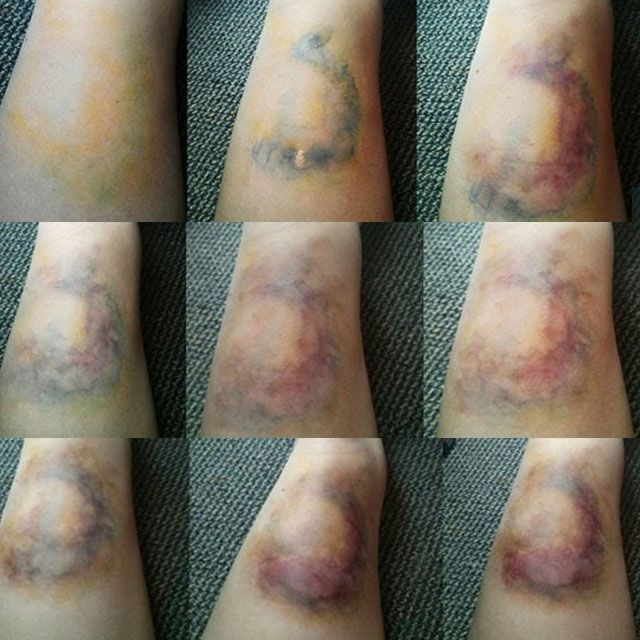 Stages of a forming bruise.