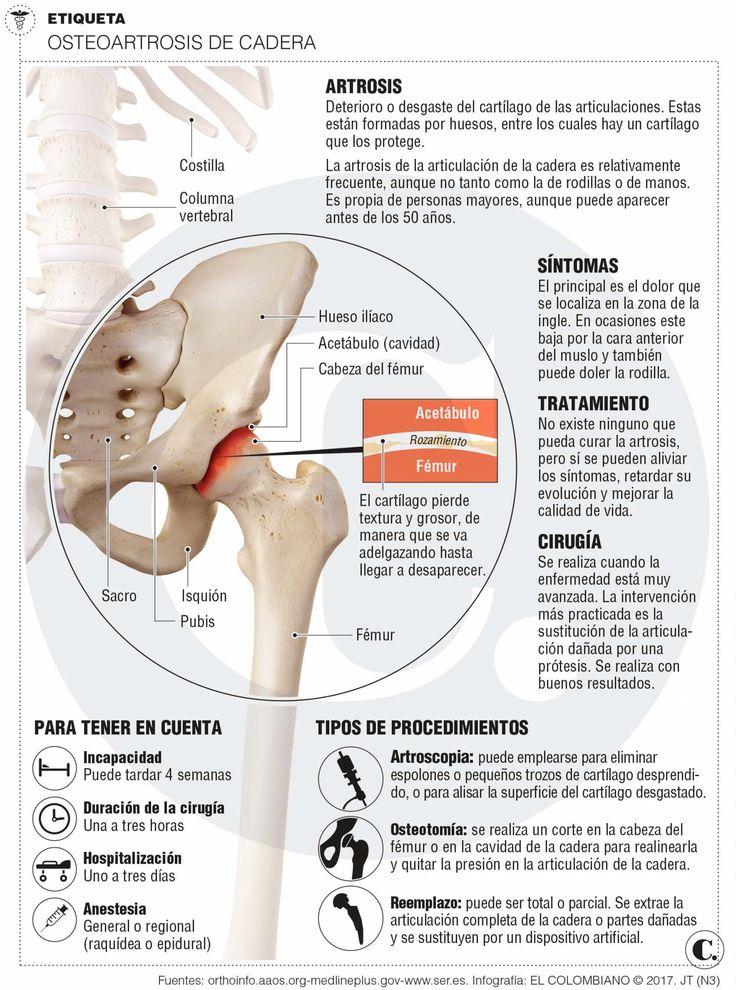 Cirugía del dt Reinaldo Rueda, mañana en Cali