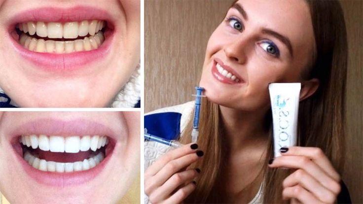 ОТБЕЛИВАНИЕ ЗУБОВ В ДОМАШНИХ УСЛОВИЯХ КРАСИВЫЕ БЕЛЫЕ ЗУБЫ КАК сделать зубы белыми? http://3dwhite.in.net/