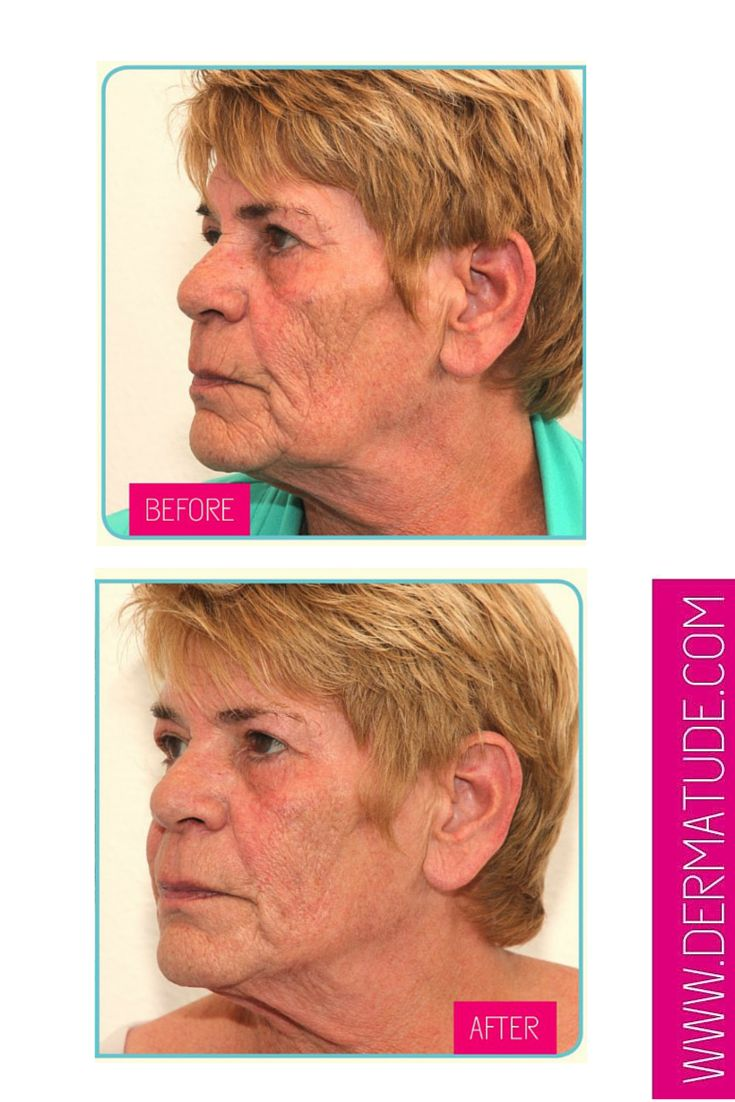#Dermatude Before and After - Facial Left