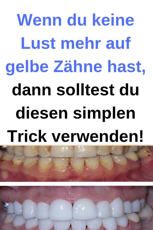 Wenn du keine Lust mehr auf gelbe Zähne hast, dann solltest du diesen simplen T…