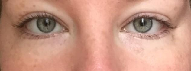 [skin concern] how to get rid of these white circles around my eyes? I find myself wearing high coverage foundation solely to disguise color discrepancy between undereye and cheeks